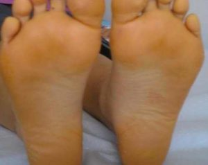 Yellow Feet at The Bottom: Meaning, Causes (Diabetes, Hard Dry Skin)