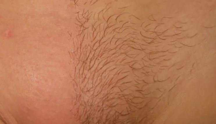 Pubic Hair Loss and Itching: Causes (Thyroid, Pregnancy) & Treatment