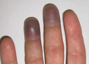Purple Fingers & Toes: Why Are Fingertips Turning Purple, Swollen w/ No Pain?