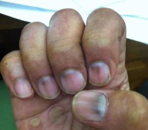 Purple Nail Beds: Meaning, Causes (Anemia, Pregnancy, Diabetes, Anorexia) & Remedies