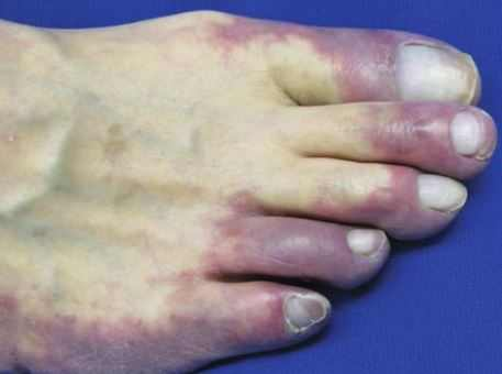 Discoloration of toes and fingertips can be a sign of diabetes