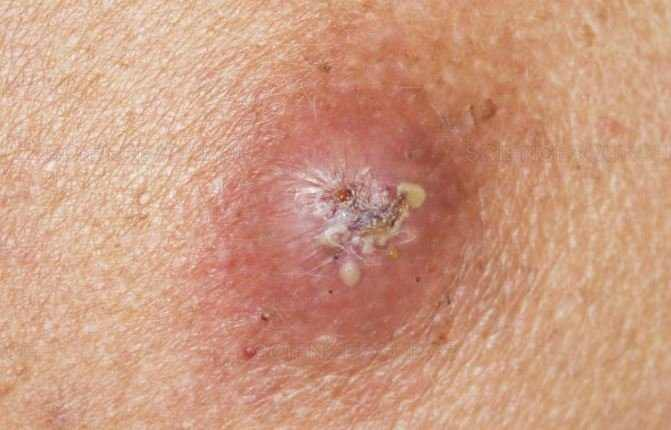Sebaceous cyst with infection