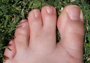 Webbed Toes: Meanings, Causes, In Celebrities & Surgery Cost