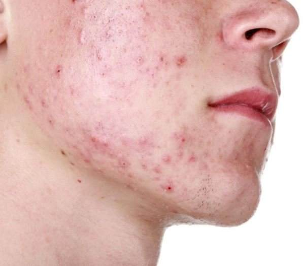 how to remove pimple marks
