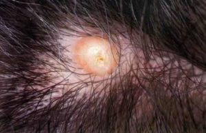Ingrown Hair on Scalp (Head) with Cyst, Bump: Causes & Removal