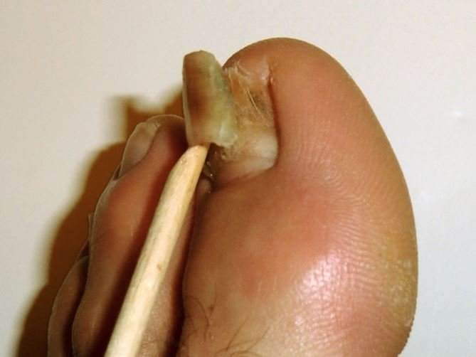 Toenail Falling Off: Causes (Diabetes, Cancer, Injury) and Home Remedies