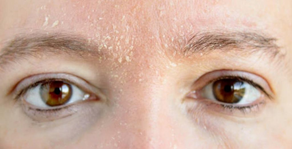 What are the risk factors towards developing eye brow dandruff