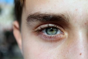 Eyebrow Dandruff: Causes, treatment and home remedies