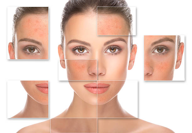 Rosacea with Acne - Causes, Treatment and Home Remedies