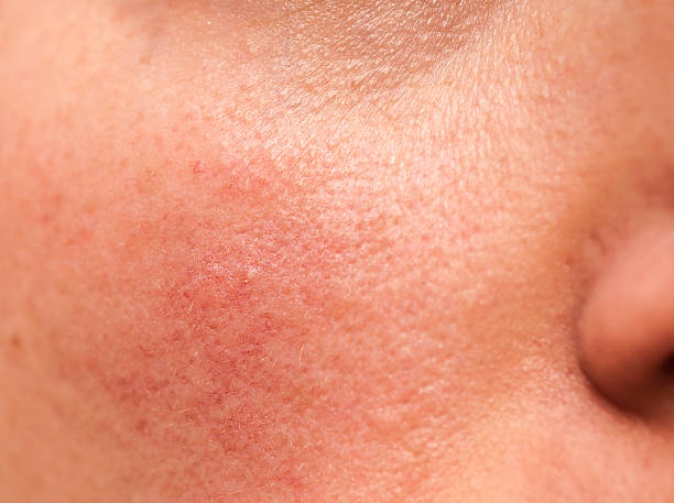 Rosacea with Acne - Causes, Treatment and Remedies