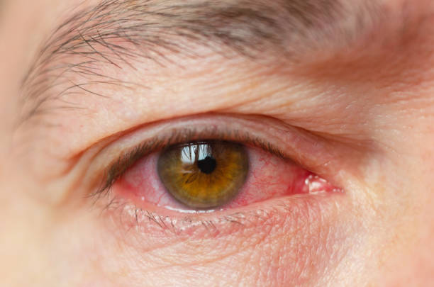 Early Symptoms of Pink Eye - challenge opening the eyes