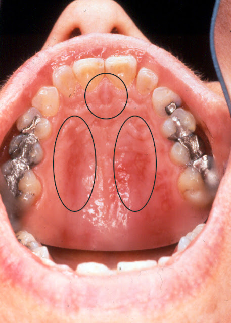 burned roof of mouth